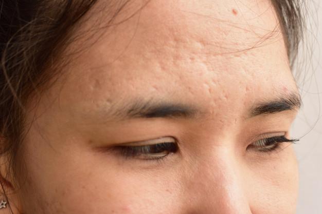 Acne Scar Reduction -Fractional CO2 Laser